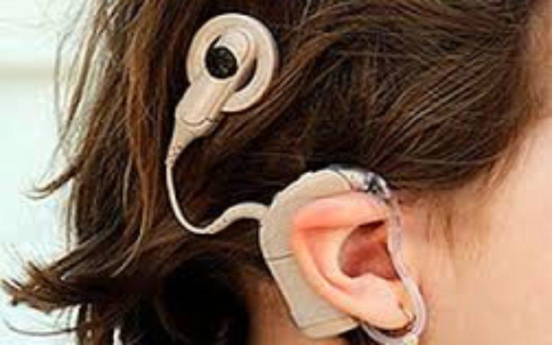 El implante coclear, una manera diferente de oír…