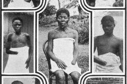 Horrores de blancos contra negros que registra la historia